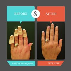 My secret to a perfect diy french manicure pinterest manicure diy home french mani all you need is polish and band aids for how to instructions go to my blog funkitch thanks solutioingenieria Choice Image
