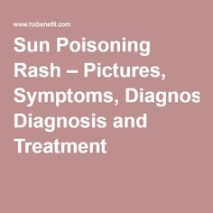 Sun Poisoning Rash – Pictures, Symptoms, Diagnosis and Treatment