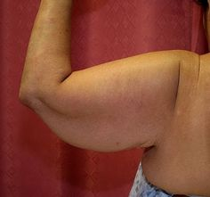 Getting Rid of Arm Fat