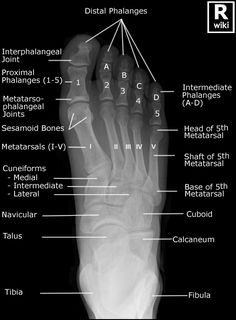 Radiographic Anatomy - Foot DP
