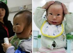 KangKang, The child with two faces. [transverse facial cleft] : creepy