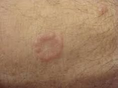 Granuloma Annulare - Pictures, Causes, Diagnosis, Complications and Treatment Natural Medicine, Herbal Medicine, Skin Problems, Health Problems, Granuloma Annulare, Types Of Rashes, Fungal Infection, Normal Skin
