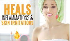 Castor Oil For Skin, Organic Castor Oil, Oils For Skin, Organic Oil, Castor Oil Benefits, Acne And Pimples, Best Skin Care Routine, Skin Rash, Skin Care Treatments