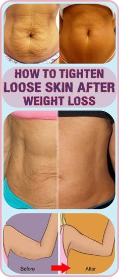 How To Tighten Loose Skin After Pregnancy Or Weightloss #tightening #weightloss #pregnancyproblems #skincare #skin #howto