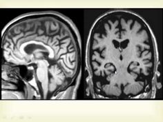 IMAGING ANATOMY OF THE BRAIN 3..MISCELLANEOUS SUBJECTS...DR. AMR SAADAWY - YouTube