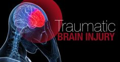 10 Things To Remember If Your Loved One battle with Traumatic Brain Injury | Medical Treatment Guidance