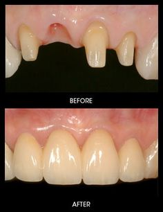 Dental #Crowns and #Bridges - Crowns are used to replace parts of teeth and Bridges are used to replace whole teeth that are missing from an arch.