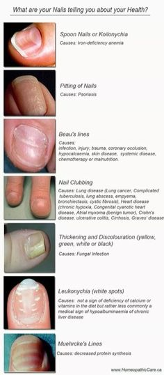 Warning: Your Nails Might Be Pointing To A Disease, 5 Symptoms That Are Good To Know - Health Food And Drink Good Health Tips, Health And Fitness Tips, Health Advice, Nail Diseases And Disorders, Nail Health Signs, Fingernail Health, Nails And Health, Pilates, Holistic Medicine