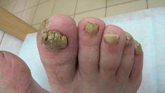 Dlaczego grzybica stóp jest tak trudna do wyleczenia? Maya, Health, Allergies, Lose Belly Fat, Health Remedies, Deodorant, Tips, Health Care, Maya Civilization