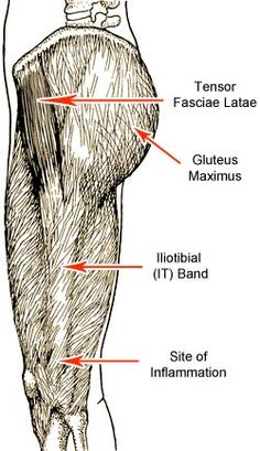 Iliotibial (IT) Band Syndrome: A Guide to Knee Pain Prevention and Treatment for Runners and Cyclists (Hip Problems Runners) Ankle Anatomy, Tensor Fasciae Latae, Iliotibial Band Syndrome, It Band Syndrome, Knee Pain Exercises, Glute Exercises, Soft Tissue Injury, Hip Problems, Runner Problems