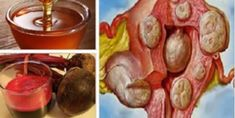 """Cysts and fibroids are common problems in women of all ages. Although these may not be malignant, they are very painful and uncomfortable"""". Melt myomas and cysts naturally, ingesting this drink; woman, do not ignore it. Healthy Menu, Healthy Food Choices, Healthy Life, Healthy Recipes, Beets Health, Best Air Fryers, Alternative Medicine, Natural Medicine, Clean Eating Tips"""