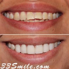 We loved this result! Our patient decided not to go too white and we think it looks great and totally natural. You have may shades to choose from when you do veneers!   #drjamsmiles #33Smile .  . All photos and video of patients are of our actual patients.  All media is the  of Cosmetic Dental Associates.  Any use of media contained herein is prohibited without written consent. . . #satx #satxdentist #dentistry #goals #smile #teeth #instagoals #transformationtuesday #beforeandafter… Insta Goals, Dental Cosmetics, Smile Teeth, Dental Procedures, Cosmetic Dentistry, Transformation Tuesday, Beautiful Smile, Things To Think About, Looks Great