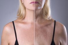 Rejuvenation Woman`s Skin, Before After Anti Aging Concept, Wrinkle Treatment, Facelift And Plastic Surgery Stock Photo - Image of compare, female: 85542482 Calendula Benefits, Matcha Benefits, Health Benefits, Sun Damaged Skin, Plastic Surgery, Skin Care Tips, Healthy Skin, Whitening, Skin Whitening