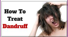 Natural Hair Care Tips for Dandruff; Are you hunting a reliable solution for dandruff problem? Tips For Dry Hair, Natural Hair Care Tips, Beauty Tips For Skin, Skin Care Tips, Natural Hair Styles, Beauty Hacks, Curly Hair Care, Curly Hair Styles, How To Treat Dandruff