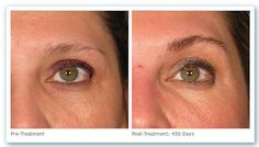 Ultherapy Pre Treatment and 450 days post treatment.  For more details .. http://skyedermatology.com/cosmetic-dermatology