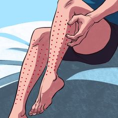 Ways to Check If You Have Restless Legs Syndrome and Why You Need to See a Doctor If You Do Restless Leg Remedies, Very Sleepy, Restless Leg Syndrome, Get Up And Walk, Sleep Schedule, Feel Tired, Muscles, Aurora Sleeping Beauty, Insomnia