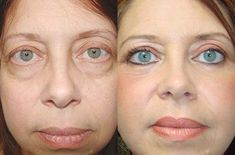 We remove the skin sagging and bagging from your before and after hooded eye surgery. Your tired gaze takes the place of a rested face. Hooded Eye Surgery, Skin Center, Eyelid Surgery, Before After Photo, Hooded Eyes, Plastic Surgery, Medical, Make Up, Face