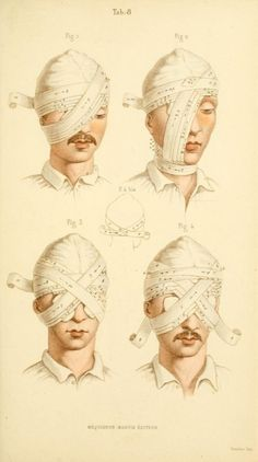 Manual of surgical bandages, devices and dressings, 1859.