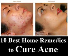 10 Best Home Remedies to Cure Acne ~ Remedies Park sivilceli surat