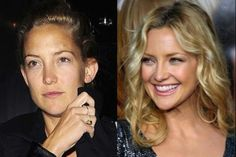 Celebrities With & Without Makeup - Kate Hudson