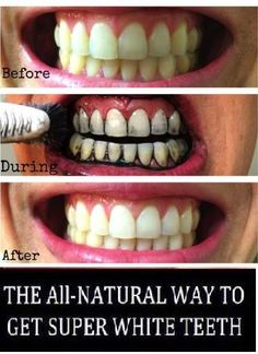 All natural way to get super white teeth