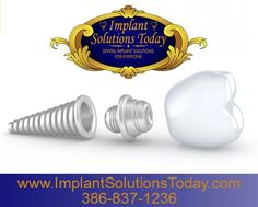At Implant Solutions Today, I use state of the art Computed Tomography to measure the exact amount of bone each of my patients have to offer for selection of the optimal implant size, shape, and type. www.implantsolutionstoday.com  | 386-837-1236