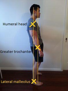 sway back posture