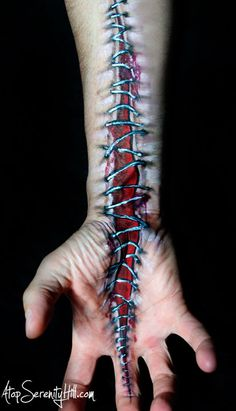 Cut hand with stitches • Painted illusions using hands « Atop Serenity Hill