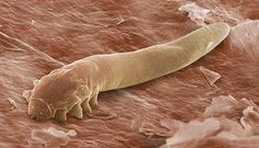 Tiny Mites Living on Your Face Hold the Key to Your Ancestry Researchers say the microscopic creatures evolved with people, traveling with ancient humans as they spread around the world. Creepy, yet interesting. Best Body Cleanse, Intestinal Parasites, Boost Immune System, Body Organs, Home Remedies, Natural Remedies, Health And Beauty, Eyelashes, Health Products