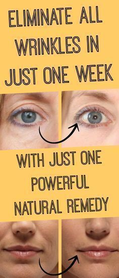 #Powerful #Natural #Remedy That #Eliminates All #Wrinkles in One Week!