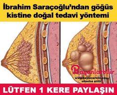 İbrahim Saraçoğlu tarifi ile göğüsteki fibroadenom yani kistleri yok eden doğal tedavi yöntemi