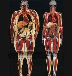 This picture always makes me cringe. It's amazing our bones support us the way they do...look how warped they are trying to support all that extra weight.