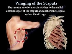 WINGING OF THE SCAPULA.,LONG THORACIC NERVE - Everything You Need To Know - Dr. Nabil Ebraheim