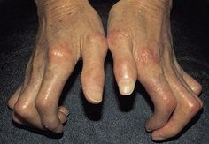 Systemic Sclerosis of the Hand