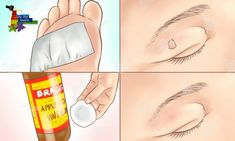 How to Remove Moles, Warts, Blackheads, Skin Tags, and Age Spots Completely Naturally! Mole Removal, Skin Tag Removal, Age Spot Remedies, Natural Remedies, Molluscum Pendulum, Skin Tag On Eyelid, Get Rid Of Blackheads, Homemade Skin Care, Blackhead Remover