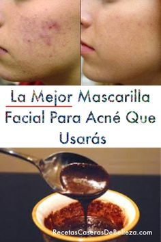 La Mejor Mascarilla Facial Para Acné are diets healthy for weight loss, diet how weight loss, Diets Weight Loss, eating is weight loss, Health Fitness Acne Facial, Facial Masks, Mascarilla Anti Acne, Mascara, Natural Oils For Skin, Creme Anti Age, Tips Belleza, Beauty Blender, Beauty