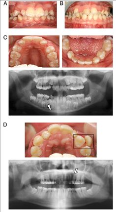 Metal Partial Dentures Pictures Check These Photos Out