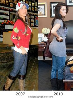 Kim Kardashian surgery, before and after