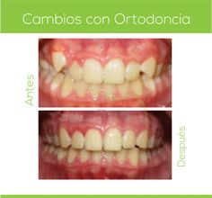 agenesia dental antes y después