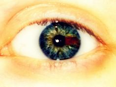 Here's a picture of my left eye, I have sectoral heterochromia. It's when your eye has a contrasting color in it. I've got green, blue, and brown.