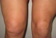 Bolesti kolena mohou být často nepříjemné a mohou bránit běžnému pohybu a chůzi. Když už se objeví problémy s chůzí a bolesti v kolenou.