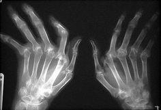Interesting Observation with Rheumatoid Arthritis Stem Cell Patient