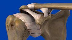 Lussazione di spalla: quando e quale intervento? Luigi, Banana, Bananas