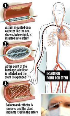 Angioplasty Operation