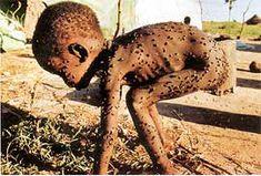 Résultats de la recherche d'images starving children in africa - Yahoo Québec Children In Africa, Hungry Children, African Children, Poor Children, Aluminum Foil Art, Poverty And Hunger, Dramas, Man Of War, American Baby