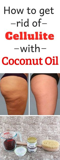 Cellulite is actually fat deposits just beneath the skin. It appears as lumps or dimples, usually near the buttocks and upper thighs, and is most common in women. Building muscle can make cellulite harder . Cellulite Wrap, Causes Of Cellulite, Cellulite Scrub, Cellulite Exercises, Cellulite Remedies, Reduce Cellulite, Anti Cellulite, Coconut Oil Cellulite, Homemade Coconut Oil