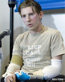 The first US soldier to survive losing four limbs in Iraq says he is looking forward to swimming and driving after receiving a double arm transplant. Military Families, Military Life, Military History, American Pride, American History, Thank You Veteran, Military Homecoming, American Veterans, The Right Stuff