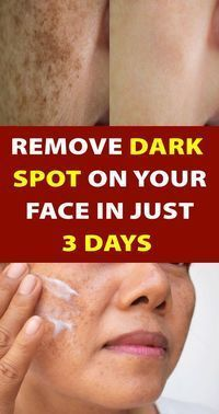 Skin Tips, Skin Care Tips, Beauty Care, Beauty Skin, Beauty Tips, Beauty Hacks, Beauty Ideas, Beauty Makeup, Too Faced