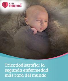 Tricotiodistrofia: la segunda #enfermedad más rara del mundo   Se conoce que la #Tricotiodistrofia es una enfermedad #hereditaria que afecta algunas partes del #organismo del recién nacido. Aprende más del tema aquí.