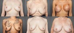 Fotógrafa registra 100 fotos dos 'verdadeiros' seios de mulheres